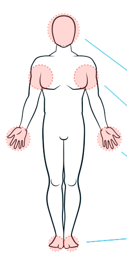 hyperhidrosis locations