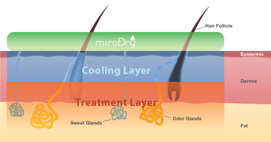 miraDry treatment how it works