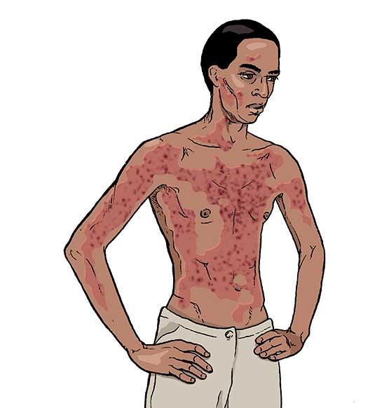 hyperhidrosis complications